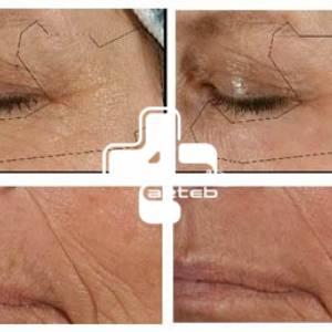 لیزر پوستی (1)